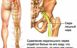 Боли в спине, грыжа диска, протрузия диска, Бехтерева болезнь, боль в крестце, боль в ноге, боль в пояснице, грыжа диска, дисцит, ишиас, люмбаго, межрёберная боль, остеохондроз, протрузия диска, ретролистез, слабость в ноге, спондилез, спондилолистез, Шеермана-Мау болезнь, лечение грыжи, лечение позвоночника, лечение остеохондроза, боль в спине, спина без боли, радикулит, позвоночникболезни лечение, болезни позвоночника, болезнь позвоночника, грыжа, грыжа диска, грыжа диска лечение, грыжа лечение, грыжа методы лечения, грыжа позвоночника, грыжа позвоночника лечение, грыжа симптомы, грыжа шейного отдела, грыжа шморля, грыжа шморля лечение, грыжи, грыжи лечение, грыжи позвоночника, грыжу, заболевания лечение, как лечить грыжу, лечение грыж, лечение грыж позвоночника, лечение грыжи, лечение грыжи диска, лечение грыжи позвоночника, лечение межпозвонковой грыжи, лечение межпозвонковых грыж , лечение межпозвоночной грыжи, лечение межпозвоночной грыжы, лечение межпозвоночных грыж, лечение позвоночной грыжи, лечение позвоночных грыж, лечение пролапса, лечение протрузии, лечения межпозвонковой грыжи, лечения межпозвоночной грыжи, медицина лечение, межпозвонковая, межпозвонковая грыжа лечение, межпозвонковой грыжи, межпозвоночная, межпозвоночная грыжа лечение, межпозвоночной, межпозвоночные, методы лечения грыжи, мышцы позвоночника, позвонковая, позвоночная, позвоночная грыжа лечение, позвоночная грыжа лечение физкультурой, пролапс, протрузии, протрузия, секвестр, симптомы грыжи, симптомы лечение, упражнения для лечения грыжи, шморля, шморля лечение, лечить протрузию диска в Москве, болит протрузия, боль от протрузии, как лечат, как лечить, где лечат, где лечить
