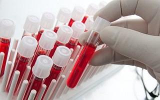 проверить свертываемость крови